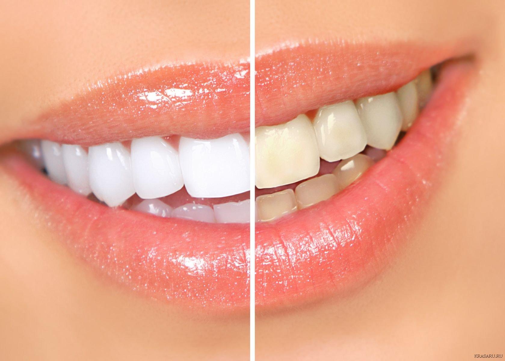 отбеливание зубов гатчина